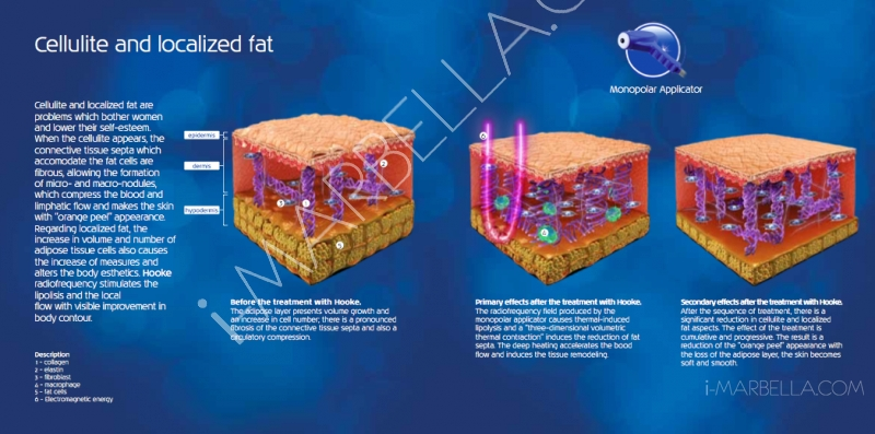 Need to get rid of cellulite and localized fat? Try Hooke at Ibramed!