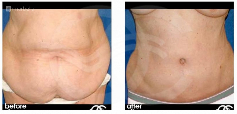 How to Handle Excess Skin After Weight Loss