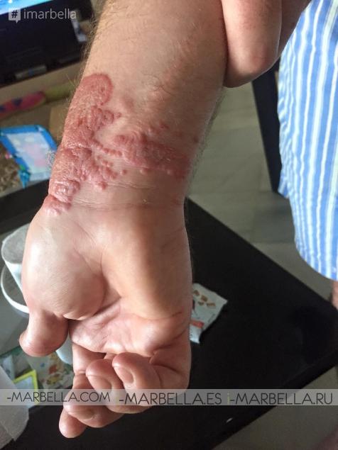 Warning: Danger of Venomous Tropical Jellyfish - Portuguese Man o' War