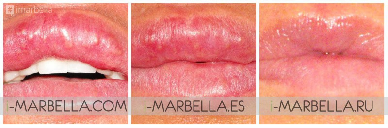 Permanent Lip Filler Gone Wrong? Ocean Clinic Marbella Can Help!
