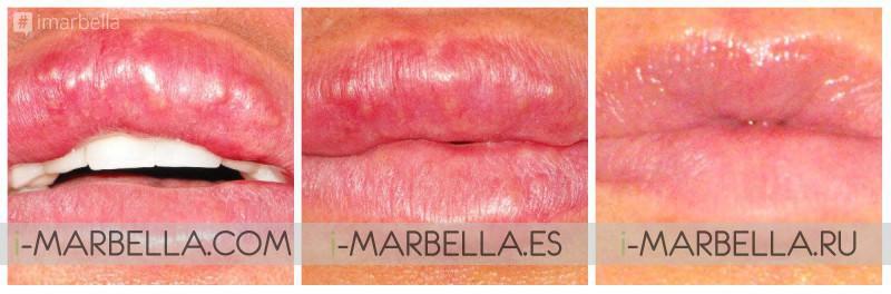 Permanent Lip Filler Gone Wrong? Ocean Clinic Marbella Can Help!