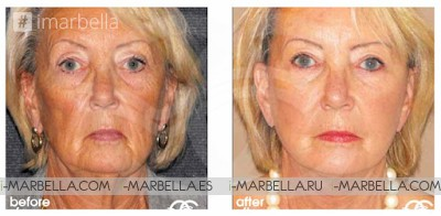 The Rise of Silver Surgery – Why More Seniors are Choosing Cosmetic Surgery