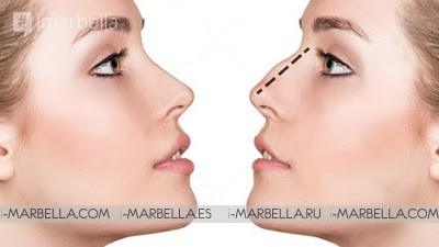 Want a New Nose? Dr. Kai Kaye from the Oceanic clinic tells us all about it!