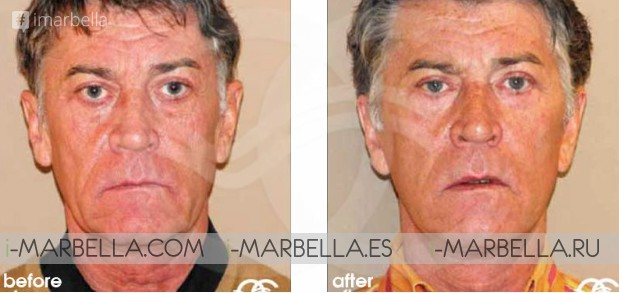 Dr. Kaye from Ocean Clinic Marbella: tips for ageing and implant procedures