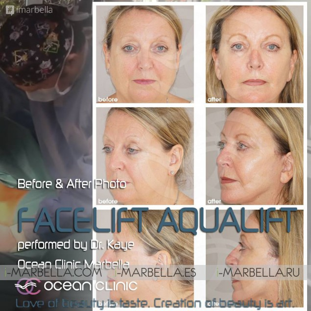 Come and get a FREE Facelift with Dr. Kaye @ Marbella Ocean Clinic – November 2017
