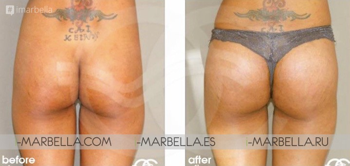 'Brazilian Butt Lift' The gluteal augmentation by Dr. Kai Kaye from Ocean Clinic Marbella May 2018