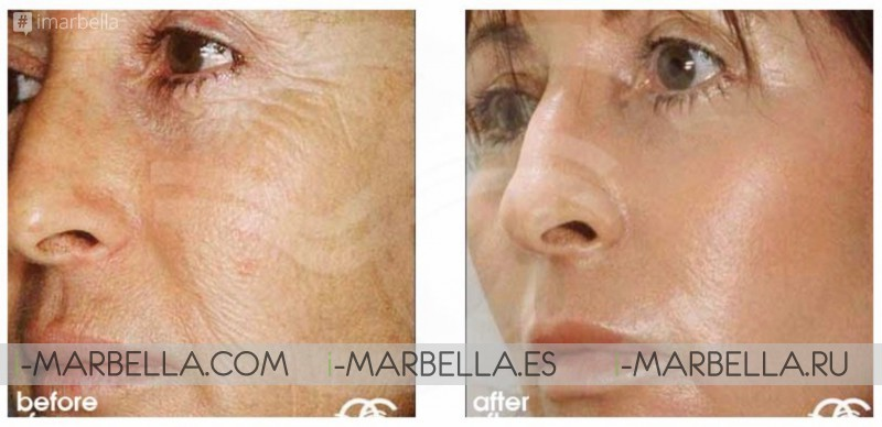 'Chemical Peel' A Solution to Improve the Texture and Tone of Your Skin @Ocean Clinic Marbella 2019