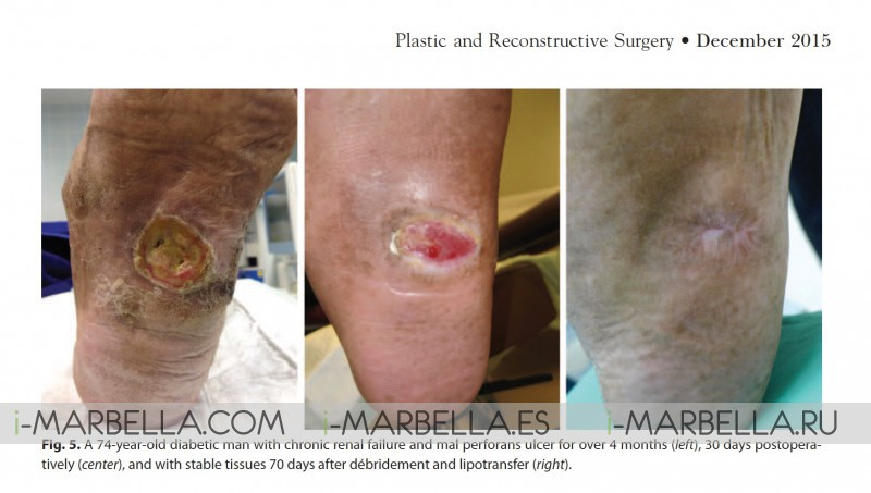 Dr. Kaye Ocean Clinic:  Non-Healing Diabetic Foot Ulcer is Urgent and Needs Effective Treatment Immediately Marbella 2020