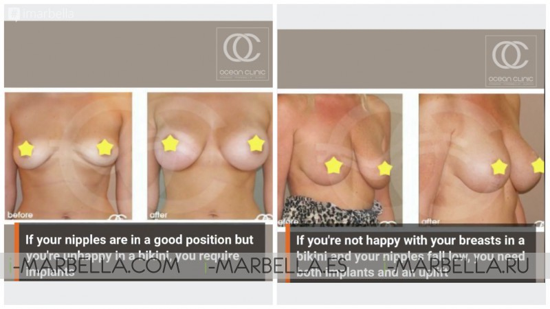 Ocean Clinic effective breast surgery home test- if you need implants, uplift - or both?