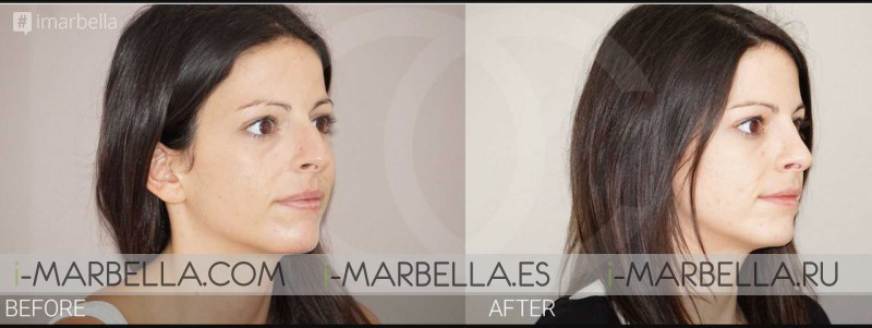 Ocean Clinic Marbella Dr Kaye advice, If your teen wants plastic surgery