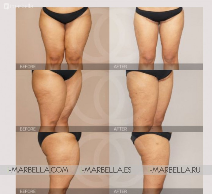 Dr Kaye Ocean Clinic answer: what is Thigh Lift and Knee Rejuvenation?