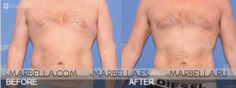 Ocean Clinic Marbella-Madrid-Zürich highlight 10 Facts of liposuction benefits for Men