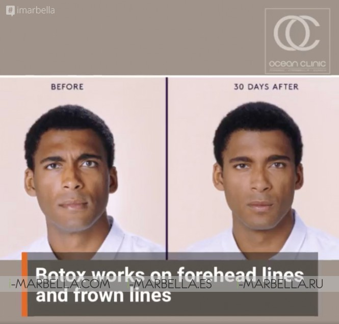 Should Men Get Botox? - Ocean Clinic Marbella Madrid Zürich @2021 Aesthetic Medicine