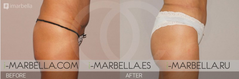 Best treatments for buttocks- Ocean Clinic Marbella Madrid