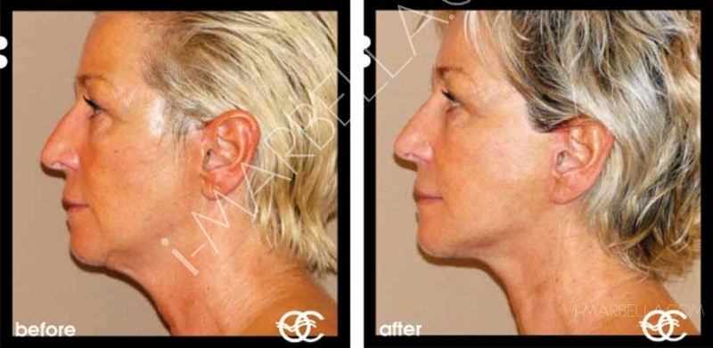 How Does a Facelift Work?